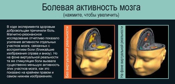 Болевая активность мозга (нажмите, чтобы увеличить)