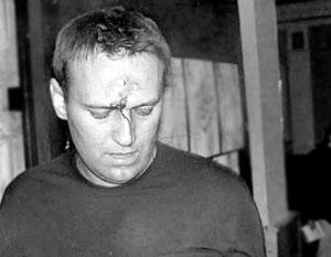 Ведущий дебатов Алексей Навальный пострадал во время драки