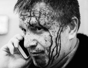 Жертвой нападения с зеленкой становился и Арсен Аваков – нынешний глава МВД