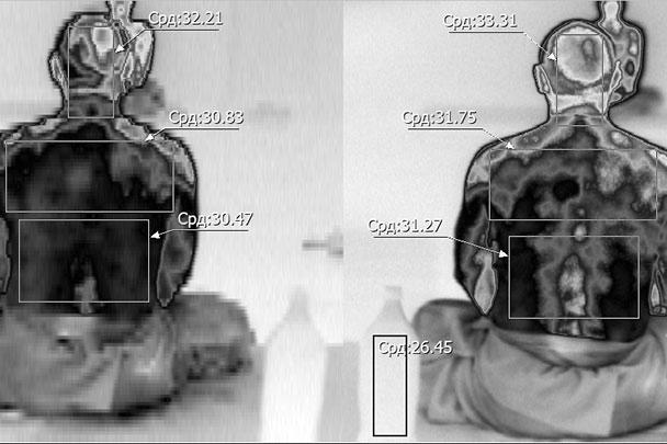 Динамика распределения температуры тела до и после медитации