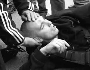 От удара злоумышленника на черепе полицейского Антона Кудряшова образовалась заметная вмятина