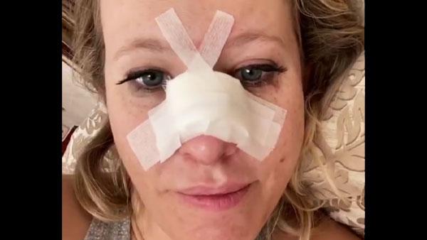 ВЗГЛЯД - Собчак понадобилась операция после перелома носа